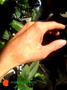 Так рука выглядит сейчас. Никакой терапии, кроме обычных перевязок, не проводилось.